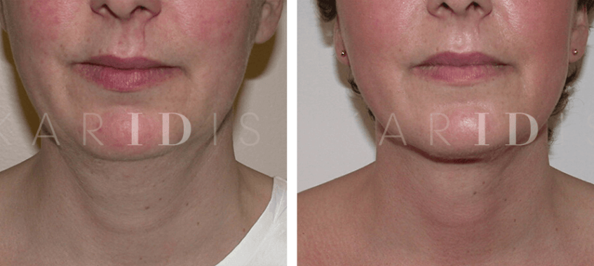 Neck reshaping with lipo